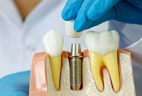implant dentistry in Brooklyn Park